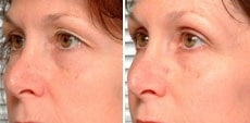 Thermage for eyelid hooding
