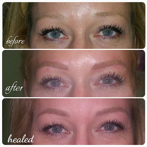 eyebrow microblading blonde hair. blonde-hairstrokes-before-and-after eyebrow microblading blonde hair a