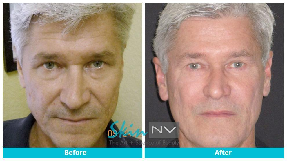 Filler, Botox and Blepharoplasty