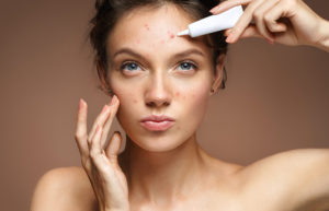 Tampa-Adult-Acne-Treatment