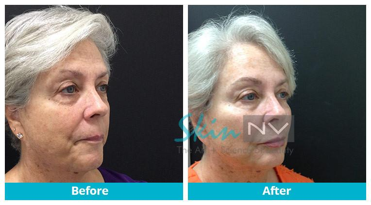 Liquid Facelift & Permanent makeup