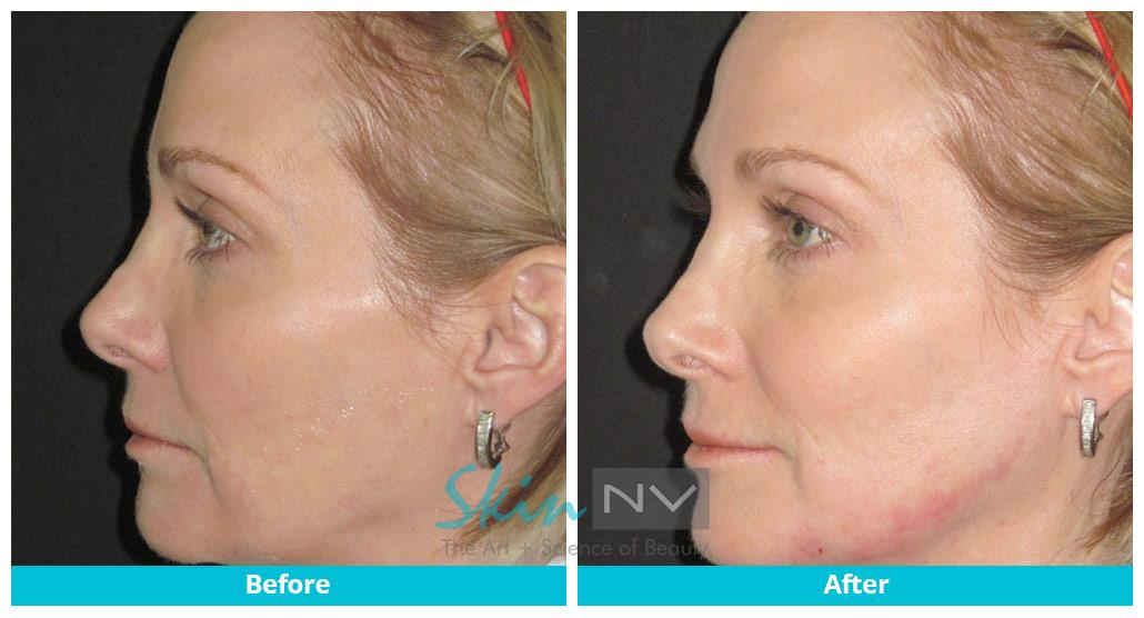 Filler in jaw and cheeks