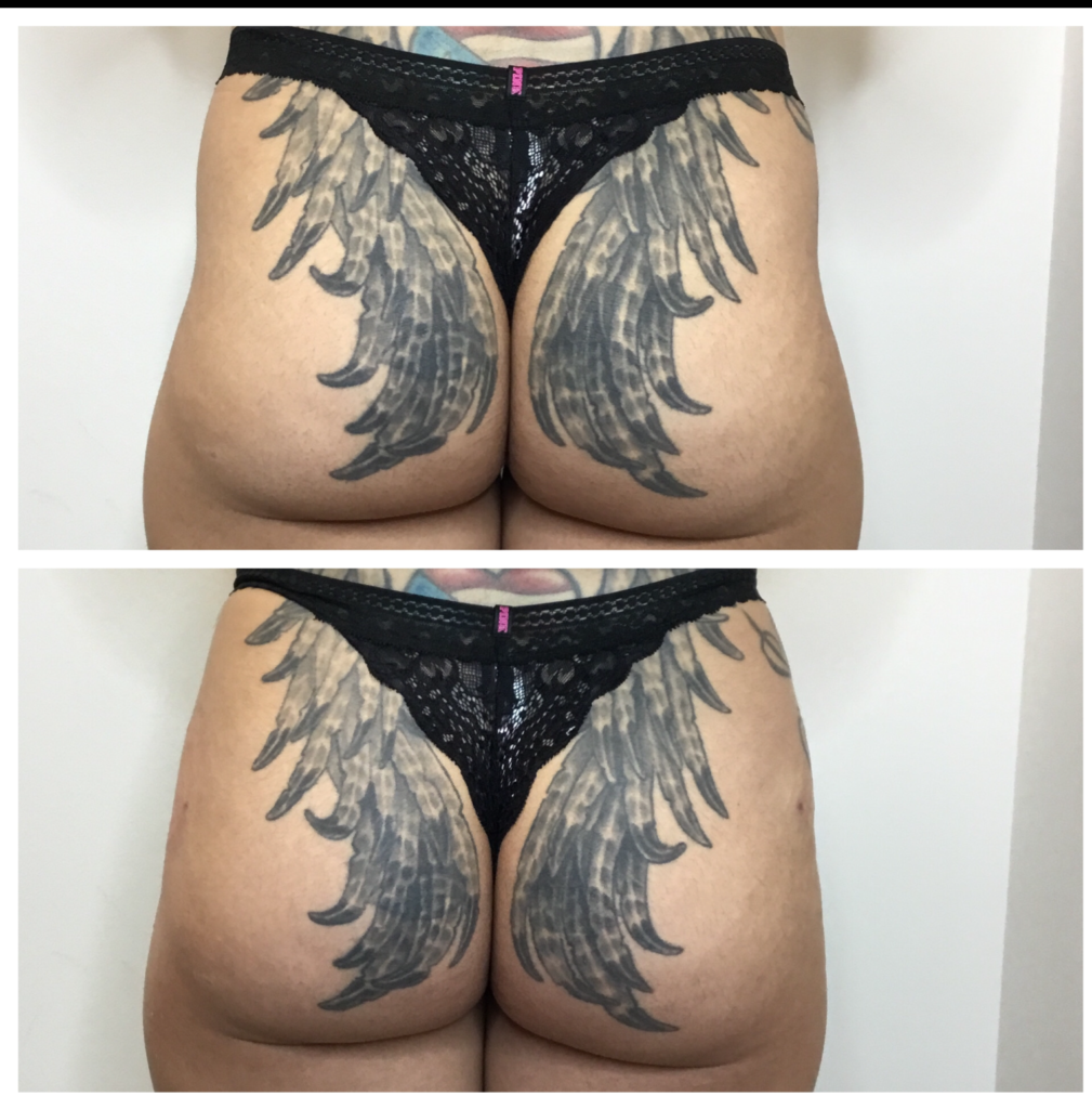 Brazilian butt lift Tampa