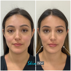 Tampa Non Surgical Face Slimming Options from Skin NV