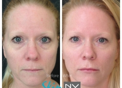 Under Eye Filler & Lip Filler